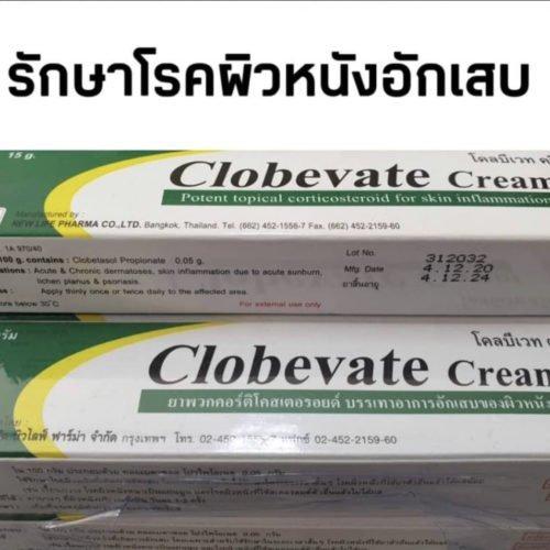 topical corticosteroid cream